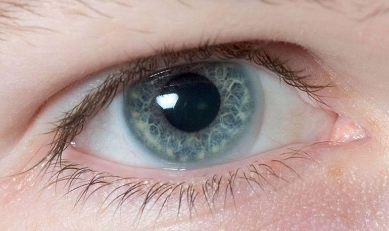 Почему в линзах мутно видно при ношении: когда одеваешь, мутнеет в одном или обоих глазах, плохо вижу вблизи после цветных