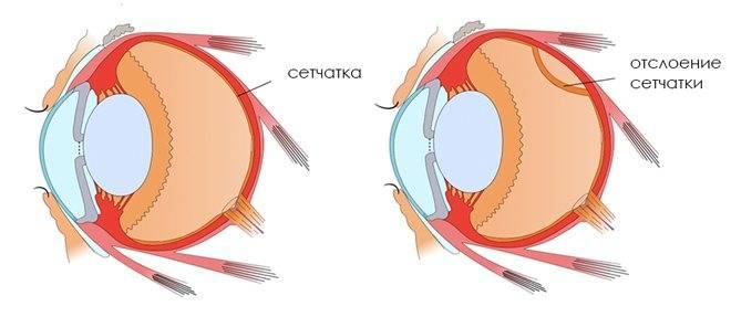 Операция при разрыве сетчатки глаза - показания, как проходит и как вести себя после вмешательства, делается ли по полису омс