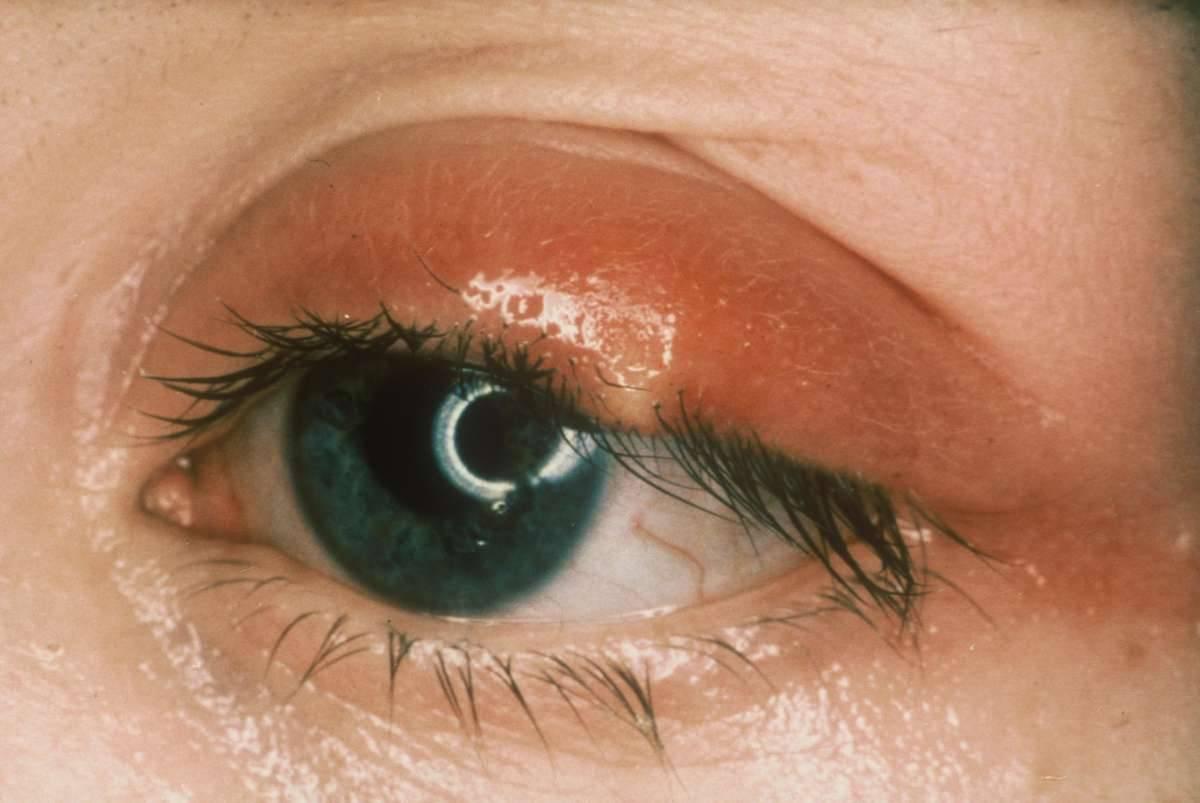 Ячмень на верхнем веке: как и чем быстро вылечить глаза