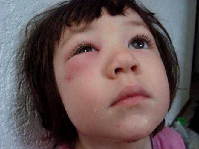Аллергия на глазах у ребенка - фото, лечение, причины и симптомы