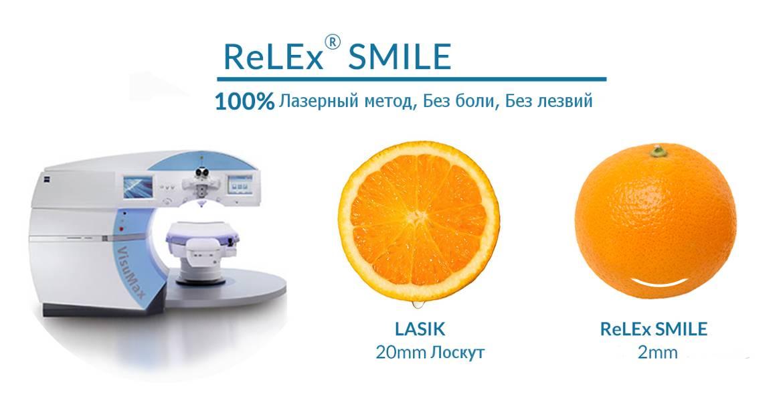 Lasik или relex smile - какой метод лазерной коррекции зрения лучше?