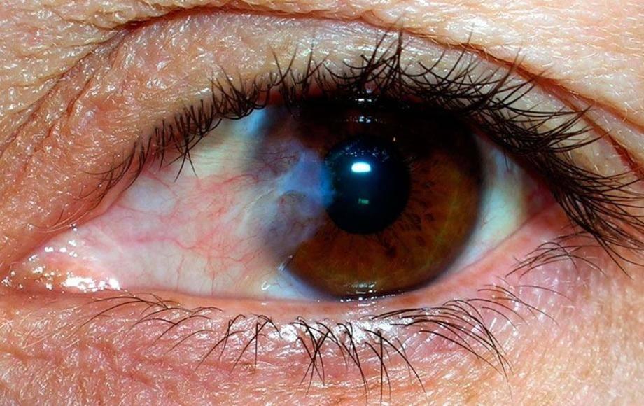 Что такое птеригиум глаза?