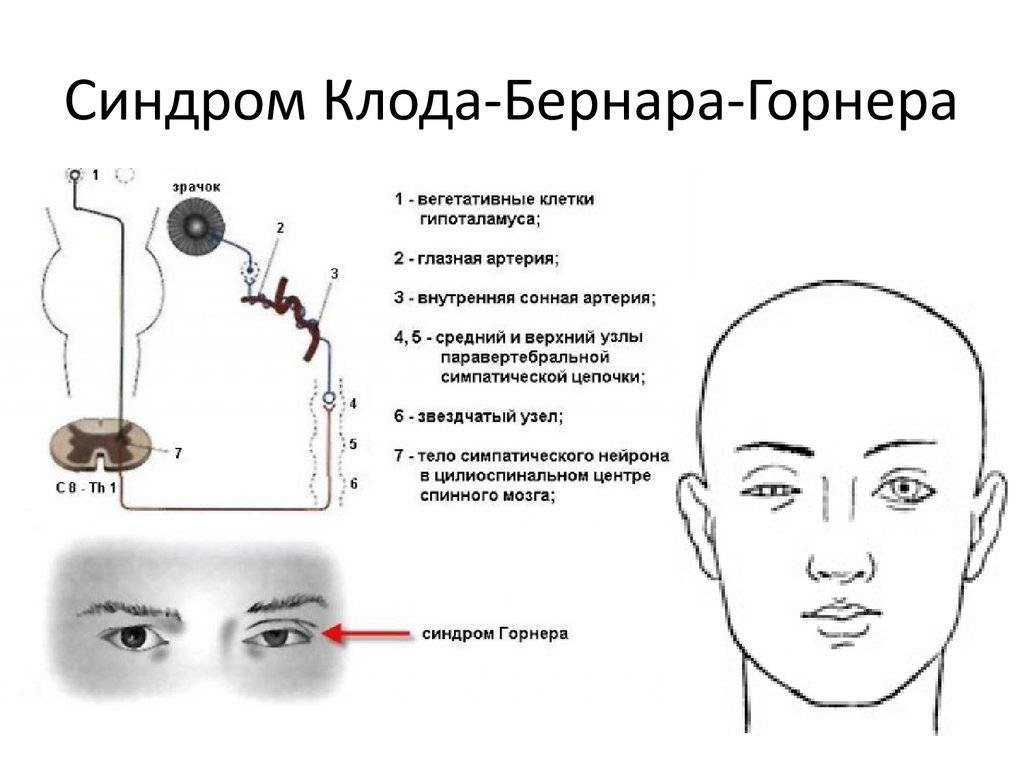 Синдром бернара горнера: лечение, причины и симптомы (фото)