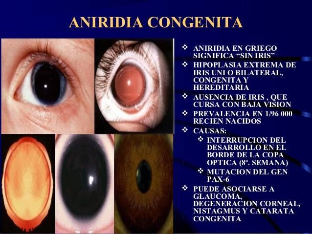 Аниридия: причины, симптомы, диагностика, лечение