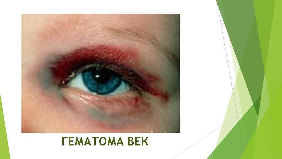 Как лечить синяк под глазом. синяк на веке и под глазом без причины