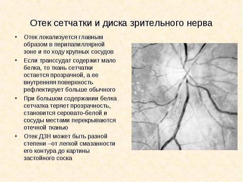 Регенерация зрительного нерва