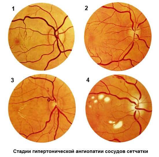 Причины и лечение сужения сосудов глазного дна