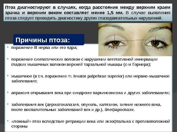 Эндокринная офтальмопатия: что это, причины, симптомы, лечение
