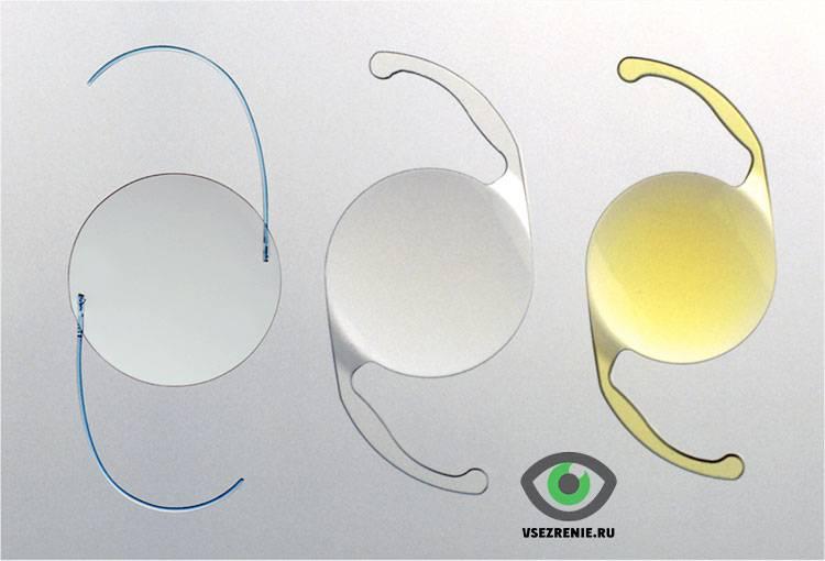 Расчёт интраокулярных факичных линз (встраиваемых в глаз) – продолжаем про глаз и его биомеханику / блог компании клиника офтальмологии доктора шиловой / хабр