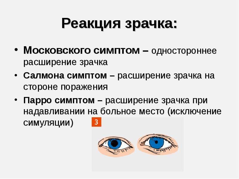 Зрачки не реагируют на свет что это значит - лечение глаз