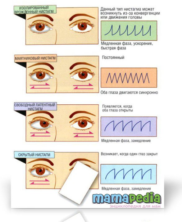 Горизонтальный нистагм: что это такое и причины возникновения, лечение, вертикальный и мелкоразмашистый у взрослых