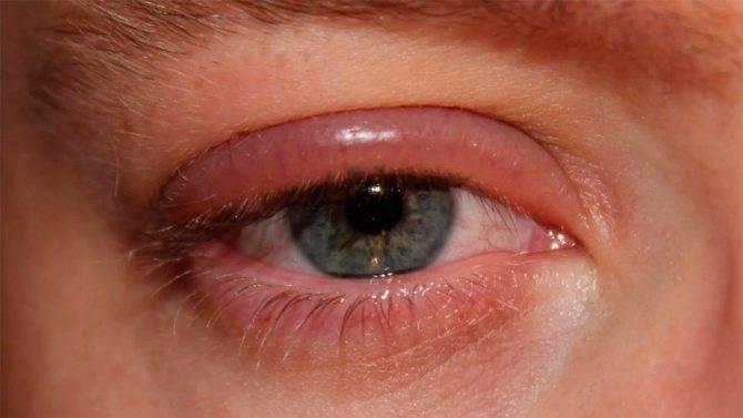 Опух и покраснел глаз - что делать, причины и лечение