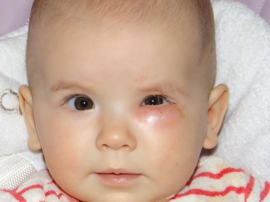 Слезится один глаз у ребенка - причины, возможные заболевания.
