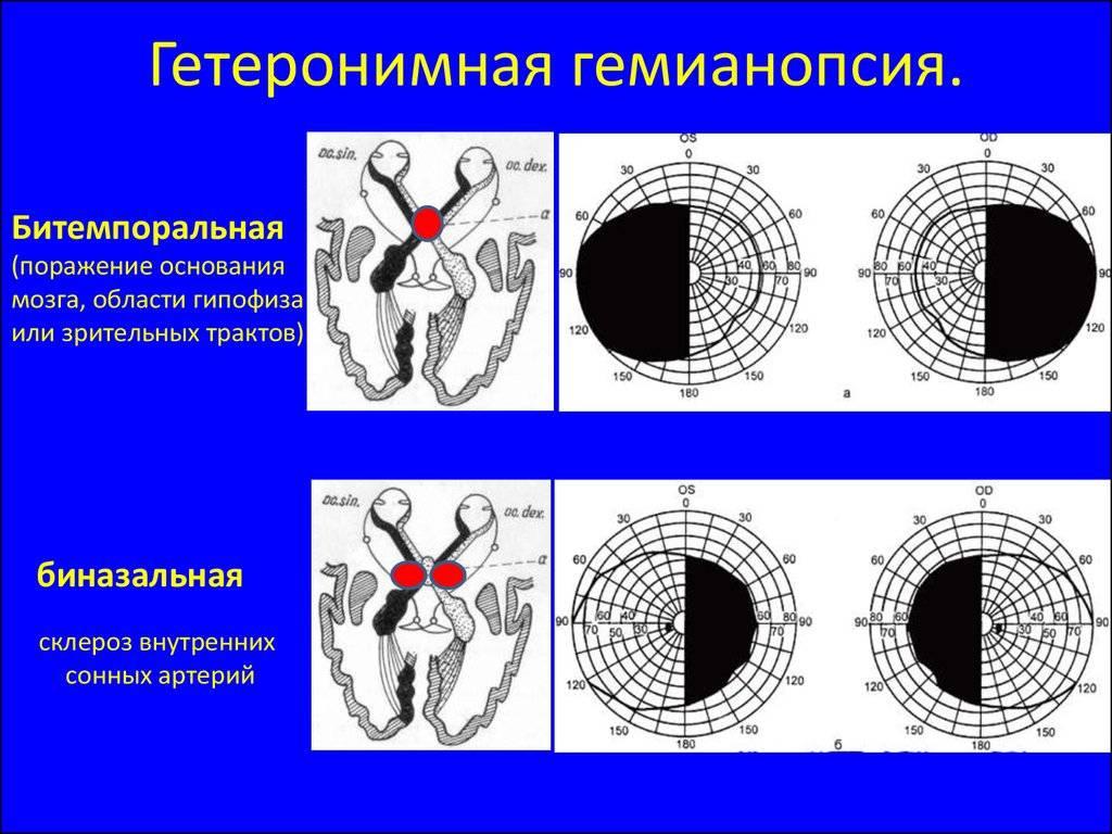 Гемианопсия - что это, виды: гомонимная, правосторонняя, левосторонняя, гетеронимная