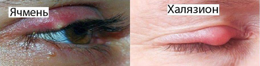 Как быстро лечить ячмень на глазу, не выходя из дома: секреты народной и медикаментозной терапии
