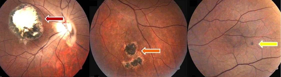 Как лечить атрофию сетчатки глаза
