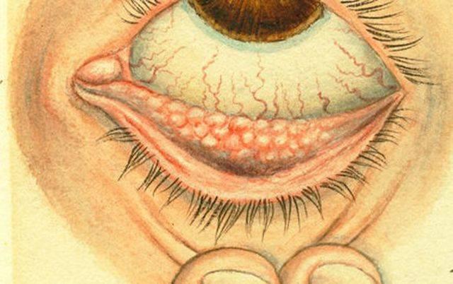Конъюнктивит: лечение взрослых, классификация, симптомы смешаного заболевания, разновидности патологии
