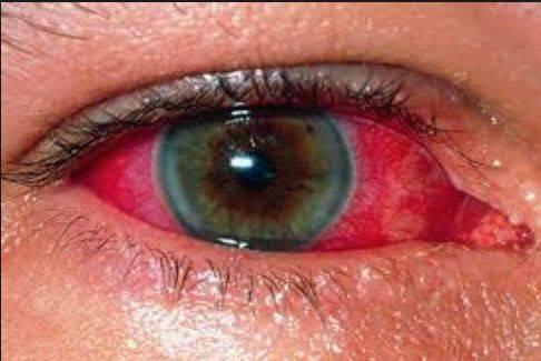 Симпатическая офтальмия - семейный доктор