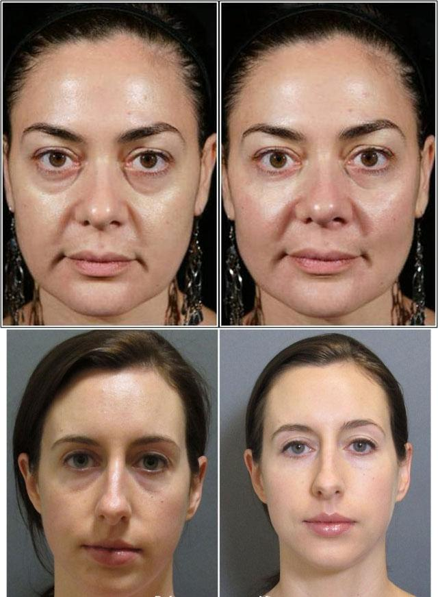 Мезотерапия от мешков под глазами с фото до и после