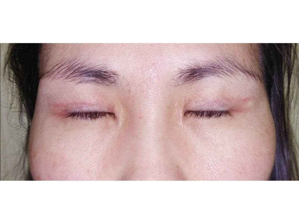 Рубцы после блефаропластики: лечение дарсонвалем и контрактубексом, профилактика