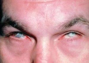 Что нужно делать, если кислота попала в глаз? как оказать первую помощь?