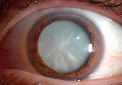Как остановить болезнь, угрожающую потерей зрения? дистрофия роговицы глаза: лечение