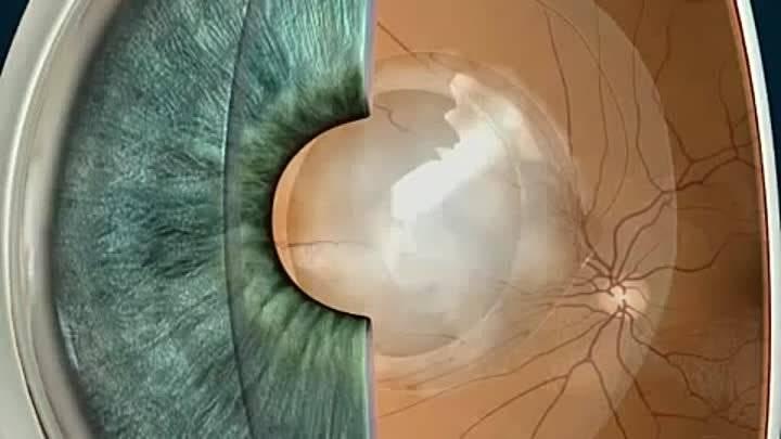 Помутнение задней капсулы хрусталика | мнтк «микрохирургия глаза» им. акад. с.н. федорова