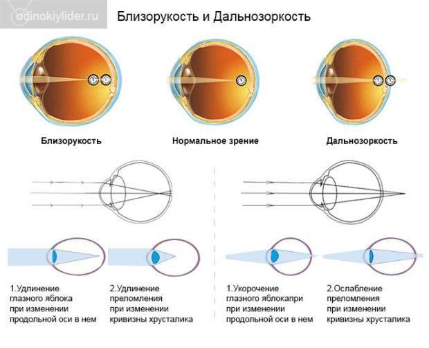 Плохая видимость в контактных линзах вблизи