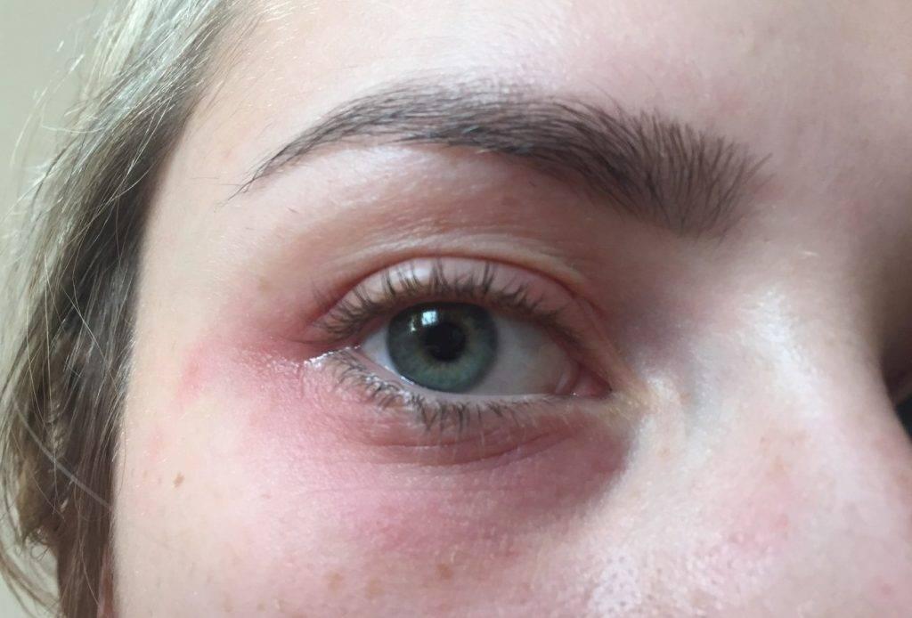 Красные пятна под глазами: пятнышка вокруг глаз у взрослого, чешутся и шелушатся