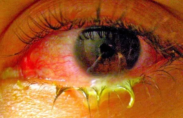 Гноятся глаза при простуде у ребенка | глазной.ру