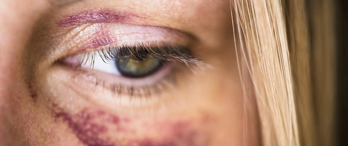 Появился синяк под глазом без удара: причины, гематома на верхнем веке, над, лечение | hk-krasnodar.ru
