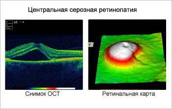 Центральная серозная хориоретинопатия: лечение цсх глаза