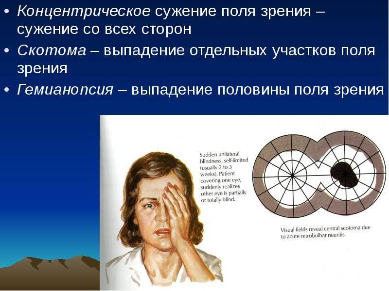 Выпадение полей зрения: причины и лечение oculistic.ru выпадение полей зрения: причины и лечение