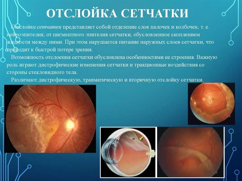 Отслоение сетчатки: причины, симптомы, лечение и профилактика, виды патологии