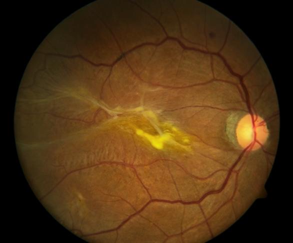 Что такое эпиретинальный фиброз глаза и как его лечить oculistic.ru