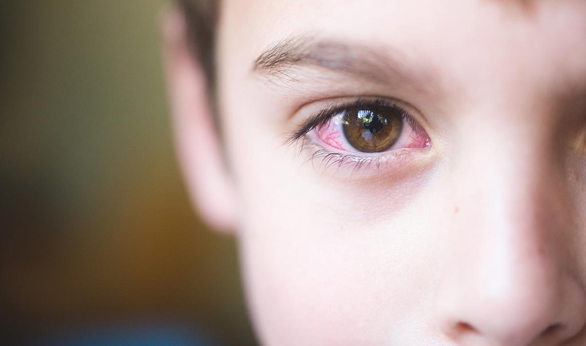Аллергический конъюнктивит у детей: симптомы (фото), лечение каплями и таблетками, причины, диагностика, осложнения, профилактика
