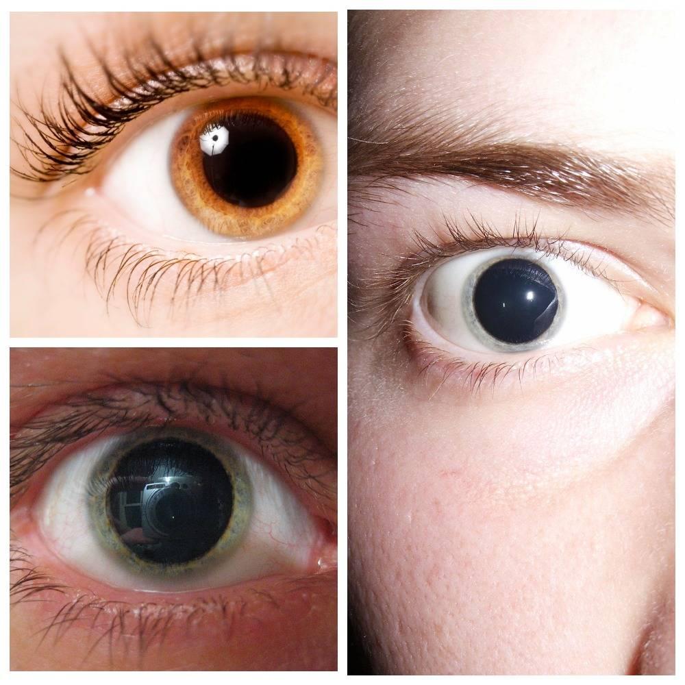 Что означают стеклянные глаза у человека - медицинский справочник