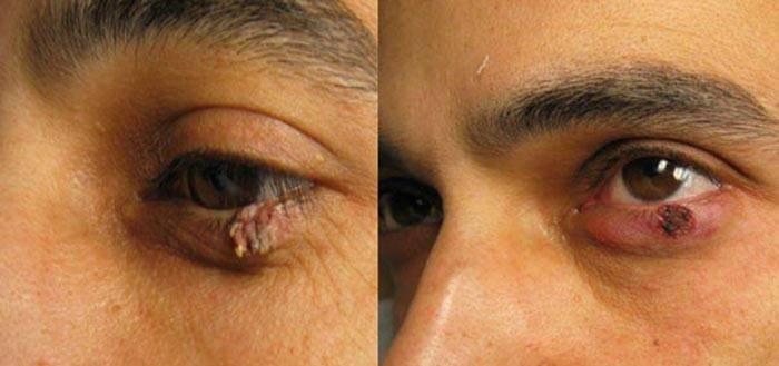 Удаление халязиона: операция, восстановление, удаление у детей, диагностика