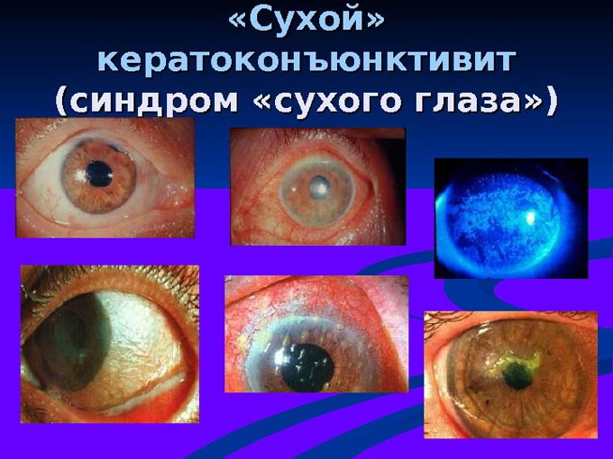 Ксерофтальм или синдром сухого глаза: почему возникает и как побороть заболевание?