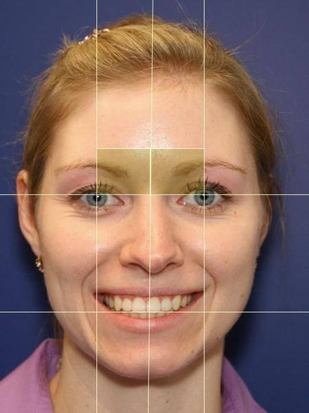 Асимметрия лица: причины патологии, как исправить ситуацию
