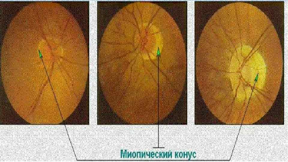 Миопическая стафилома. миопическая дегенерация. причины и симптомы стафиломы