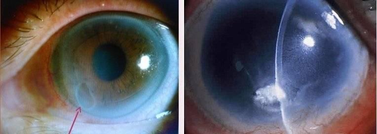 Кератопатия роговицы глаза - симптомы, причины и лечение | медицинский сайт