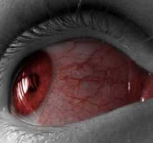 Что делать, если лопнул сосуд в глазу: виды кровоизлияний и лечение