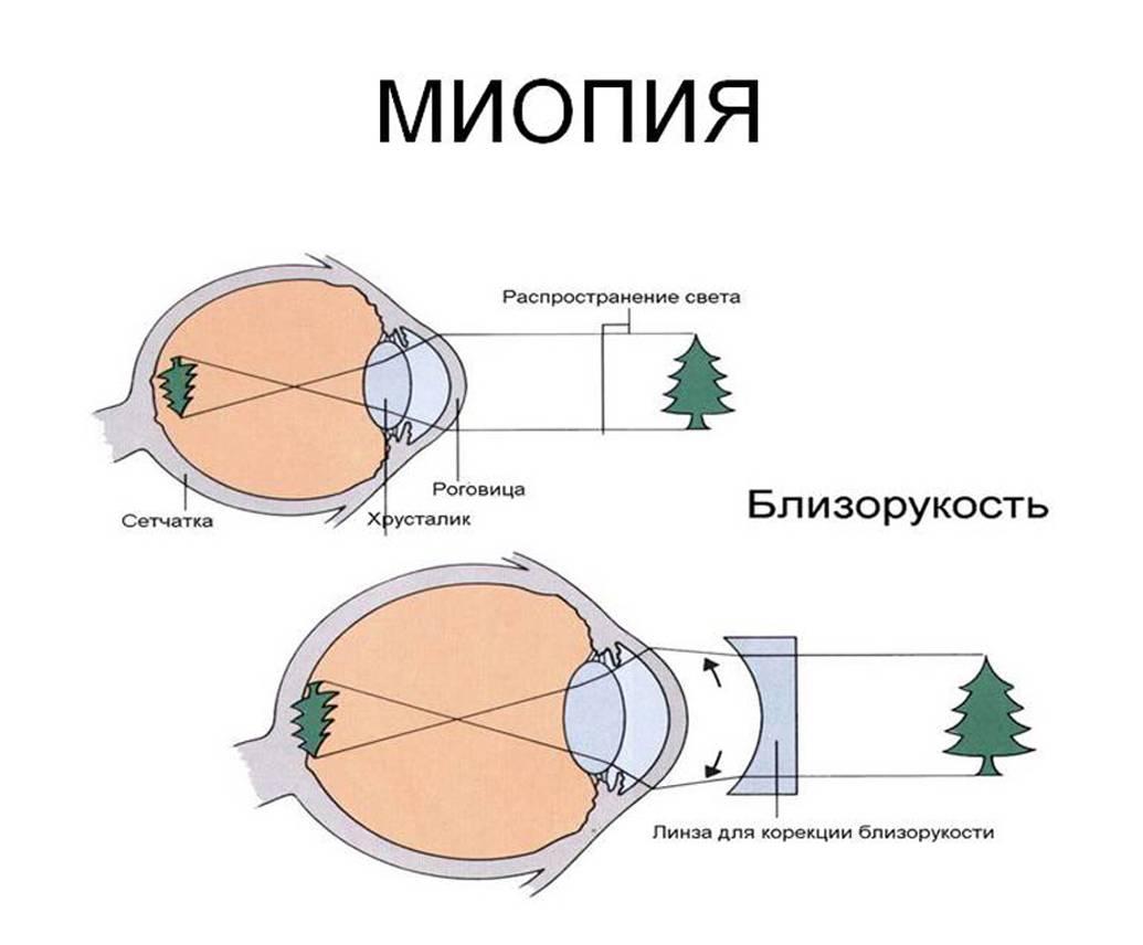 Миопия (близорукость) высокой степени – опасность заболевания, способы лечения