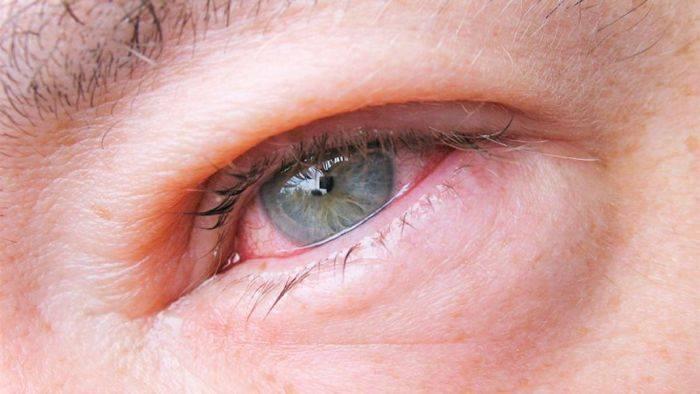 Почему слезятся глаза у взрослого — что делать