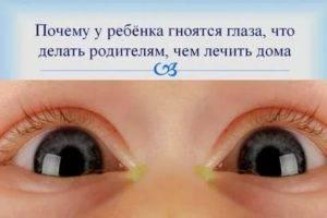 У новорожденного гноится глазик – что делать, причины и лечение