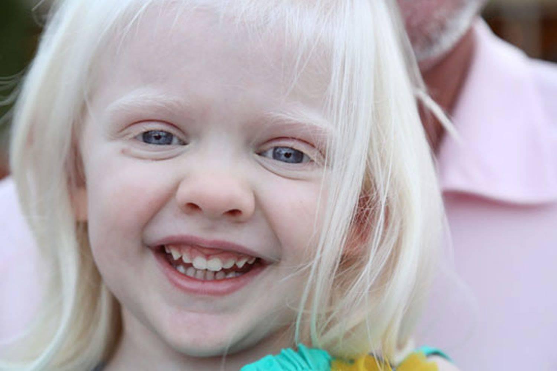 Люди альбиносы с красными глазами: причины глазного альбинизма, классификация