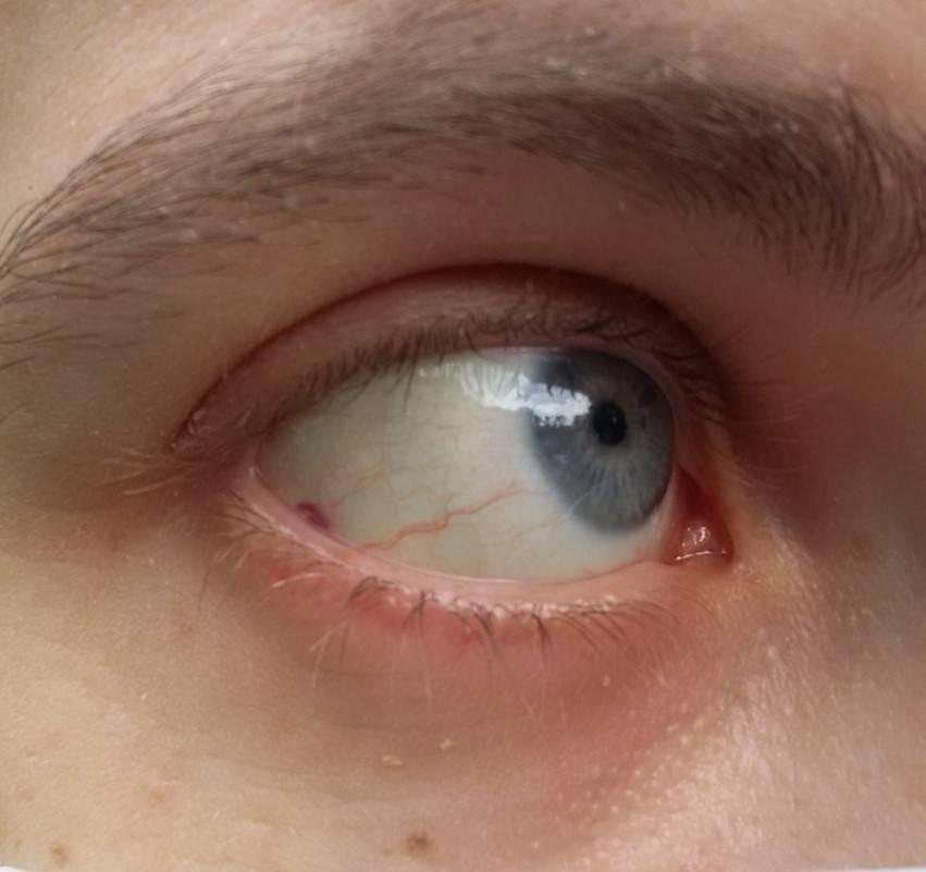 Означают голубые белки глаз. голубые (синие) склеры