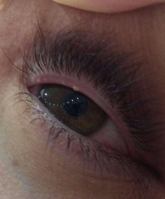 Водянистые прыщи на лице у взрослого: симптомы, причины возникновения, лечение, профилактика