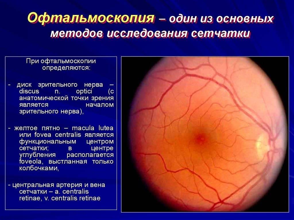 Тонография глаз: расшифровка, норма, показания и противопоказания диагностики